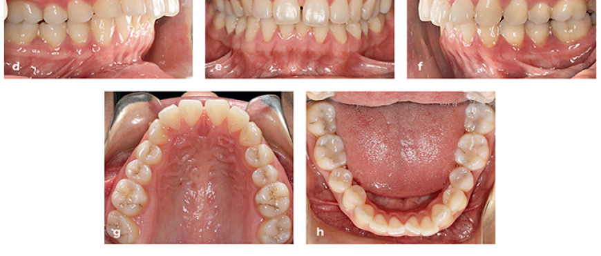 clear aligner patient photos and x rays