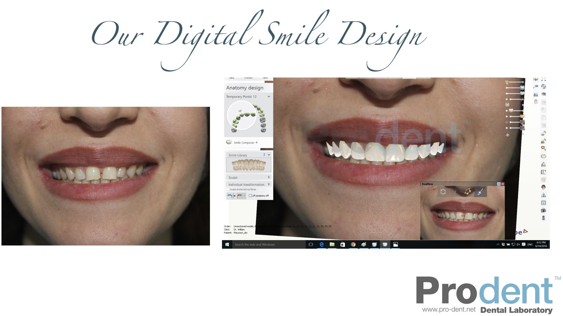 Smile Design 1