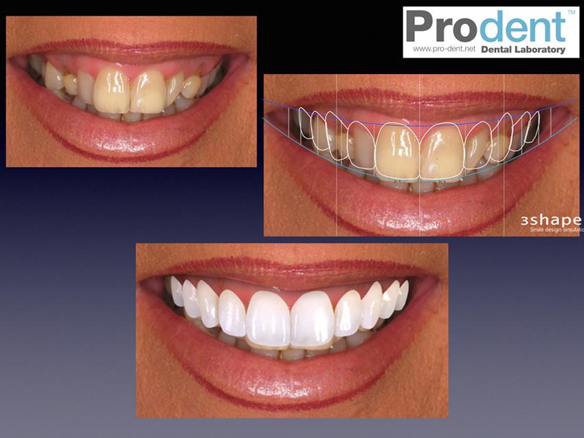 Smile-Design-Page